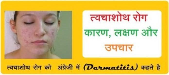 त्वचाशोथ रोग कारण, लक्षण और उपचार