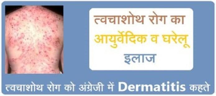 त्वचाशोथ रोग का आयुर्वेदिक