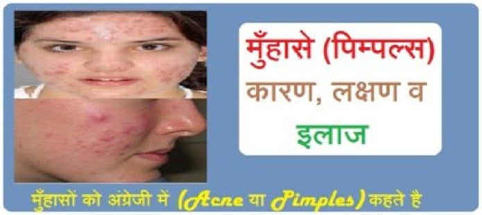 मुँहासे (Pimples)- कारण, लक्षण व इलाज