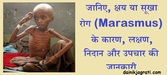 क्षय या सूखा रोग (Marasmus)