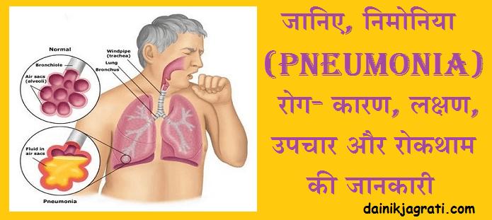 निमोनिया (Pneumonia)