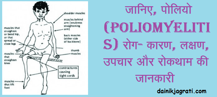 पोलियो (Poliomyelitis)