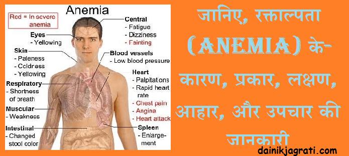 रक्ताल्पता (Anemia)