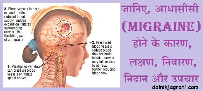 आधासीसी (Migraine)