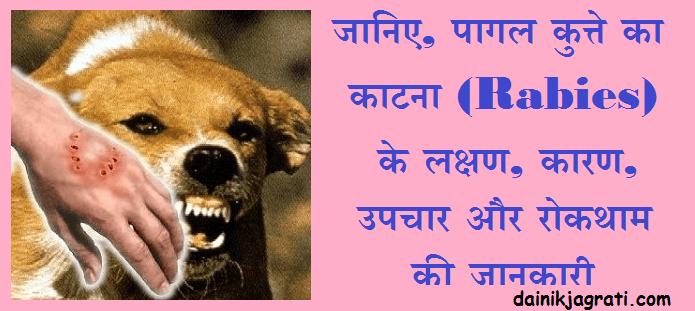 पागल कुत्ते का काटना (Rabies)