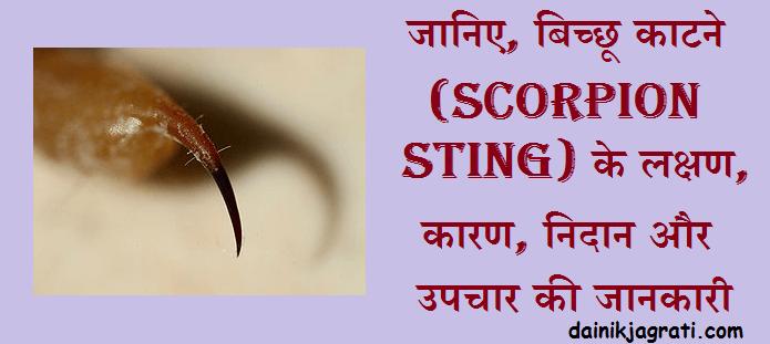बिच्छू काटने (Scorpion sting)