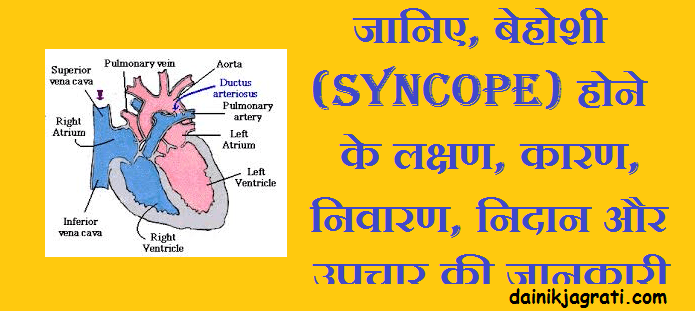बेहोशी (Syncope)