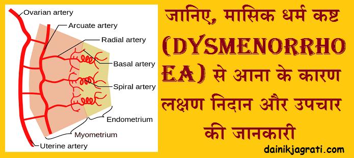 मासिक धर्म कष्ट (Dysmenorrhoea)