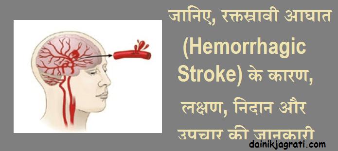 रक्तस्रावी आघात (Hemorrhagic Stroke)