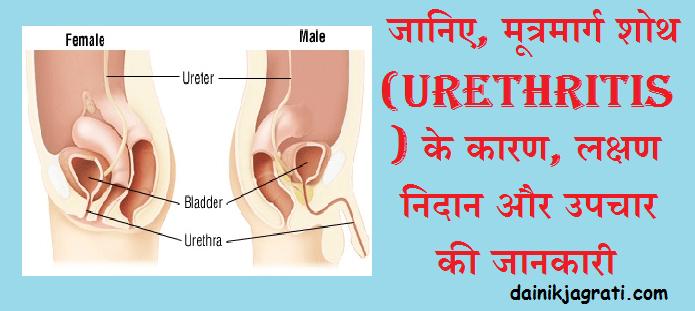 मूत्रमार्ग शोथ (Urethritis)