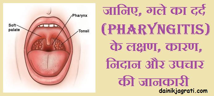 गले का दर्द (Pharyngitis)
