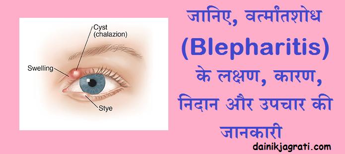 वर्त्मांतशोध (Blepharitis)