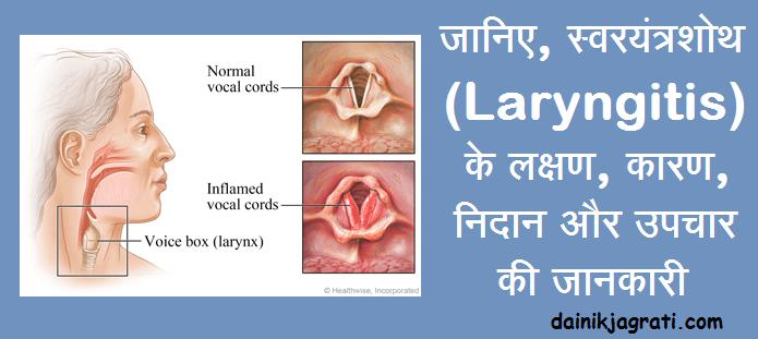स्वरयंत्रशोथ (Laryngitis)